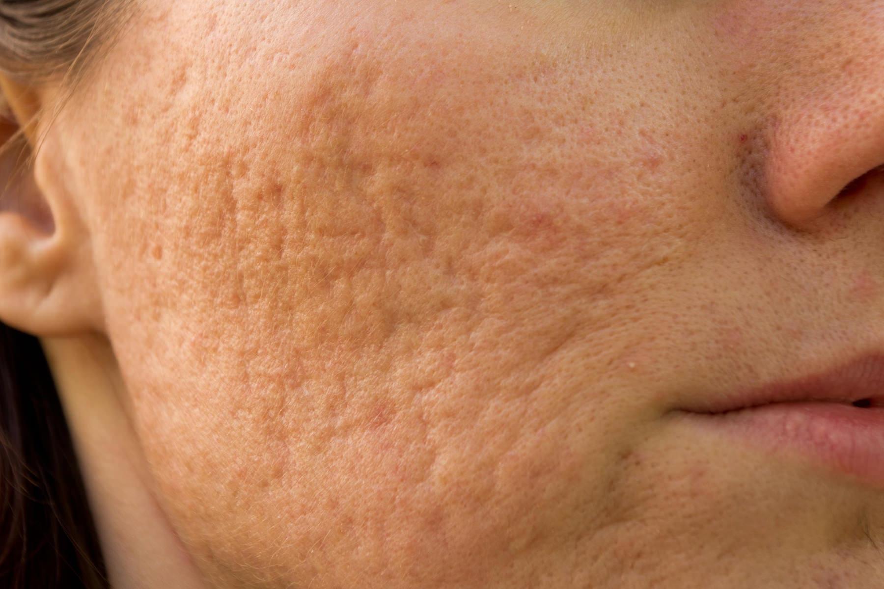 Huidpraktijk Nieuwkoop Acne littekens
