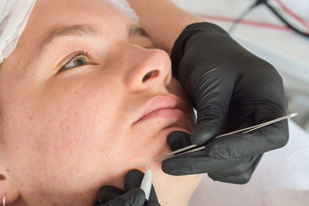 Huidpraktijk Nieuwkoop Elektrische epilatie