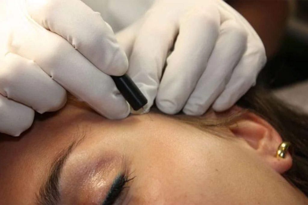 Huidpraktijk Nieuwkoop Goedaardige huidonregelmatigheden verwijderen coagulatie of curretage