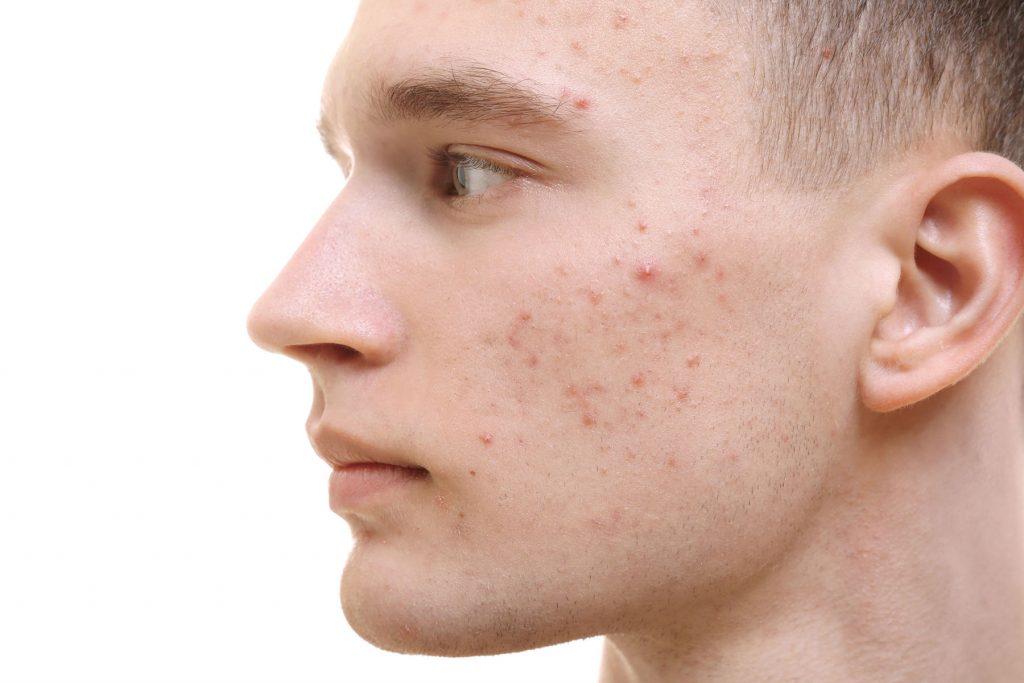 Huidpraktijk Nieuwkoop acne