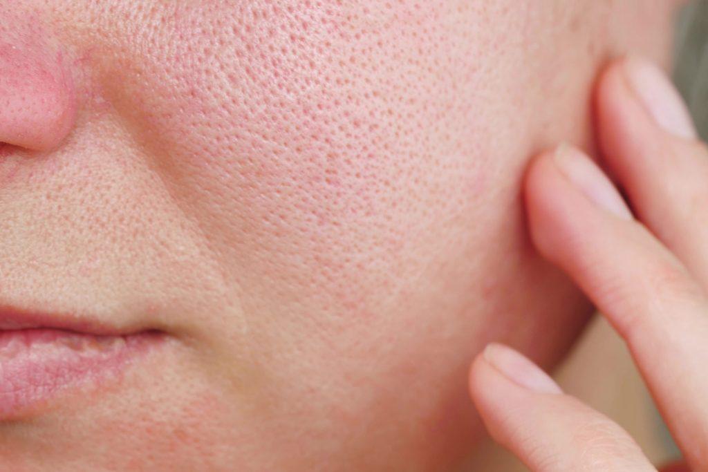 Huidpraktijk Nieuwkoop grove poriën