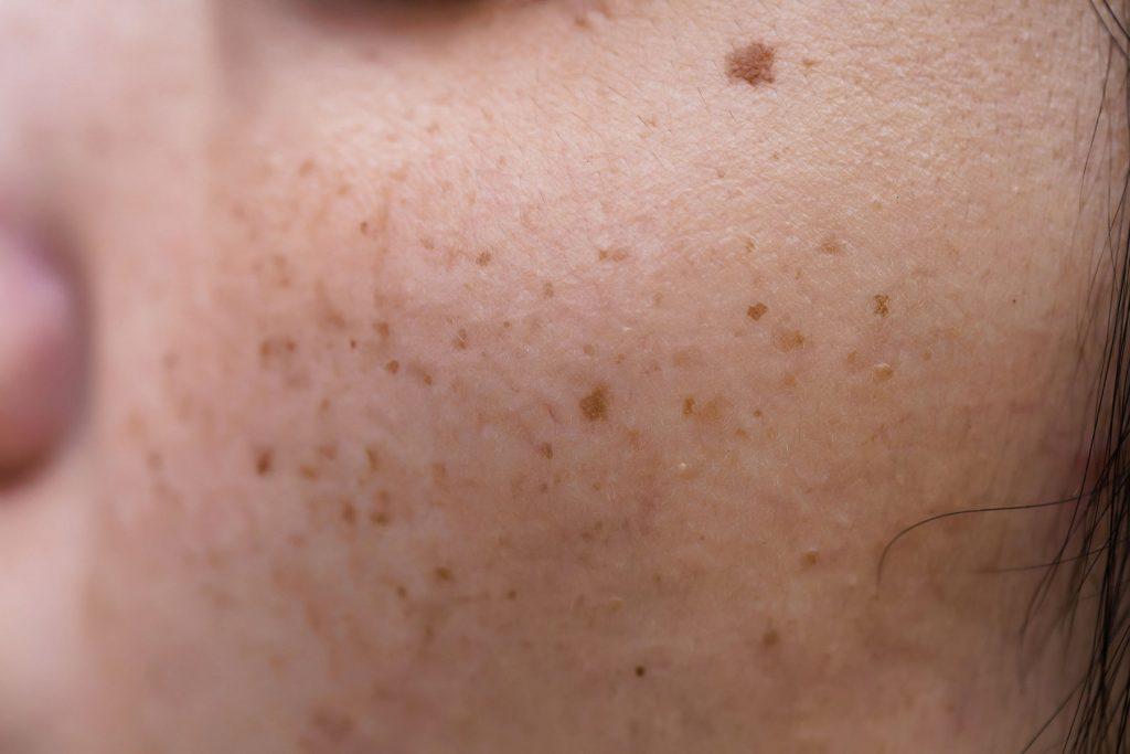 Huidpraktijk Nieuwkoop pigmentvlekken