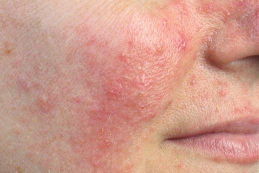 Huidpraktijk Nieuwkoop rosacea